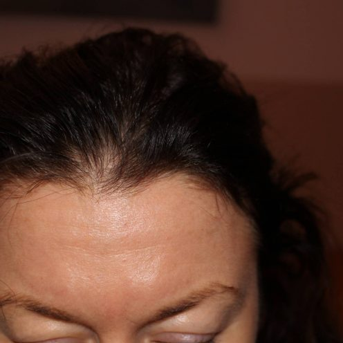 Hair Thinning at front hair line 09-10-2017