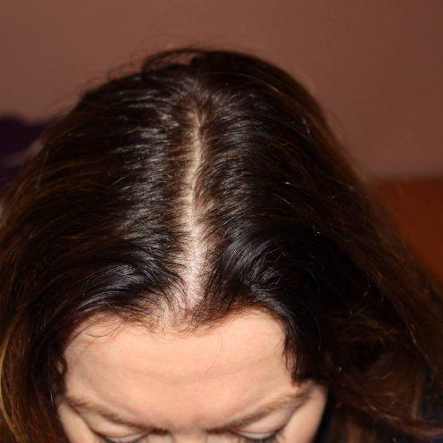 Hair thinning at centre parting 09-10-2017